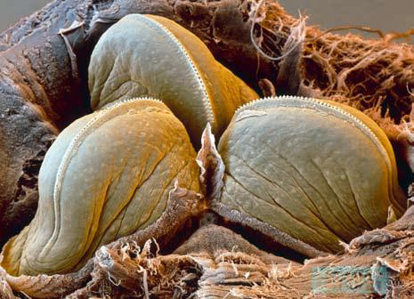 水蛭口腔放大图